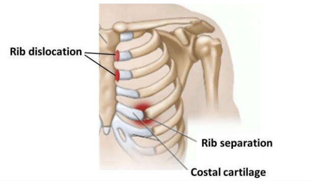 Can Chiropractic Help Fix A Dislocated Rib?